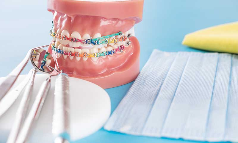 What Are The Most Useful Ways To Take Care Of Your Dental Braces